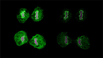 During cell division, components of the nuclear envelope, the membrane that surrounds the nucleus (shown in green), intermix with its neighboring organelle, the endoplasmic reticulum. One team of newly announced Allen Distinguished Investigators is investigating how perturbing steps of nuclear formation (bottom cells) affects the endoplasmic reticulum. Images courtesy of Dollie LaJoie, Huntsman Cancer Institute at the University of Utah.